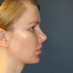 25-34 year old woman treated with Rhinoplasty after 3559802