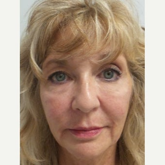 64 year old woman treated with Restylane Lyft after 2046858