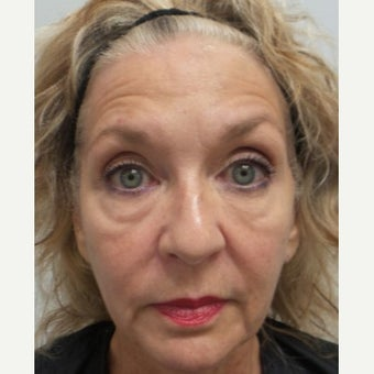 64 year old woman treated with Restylane Lyft before 2046858