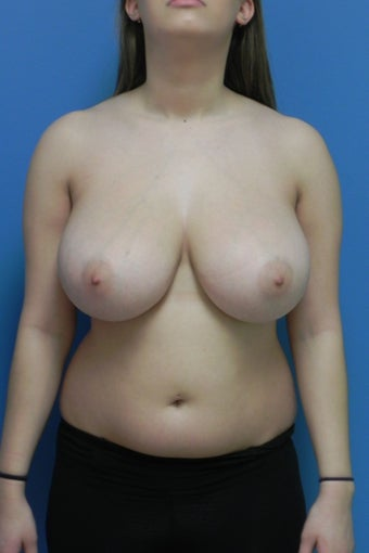 18 Year Old Female Breast Reduction before 1350376