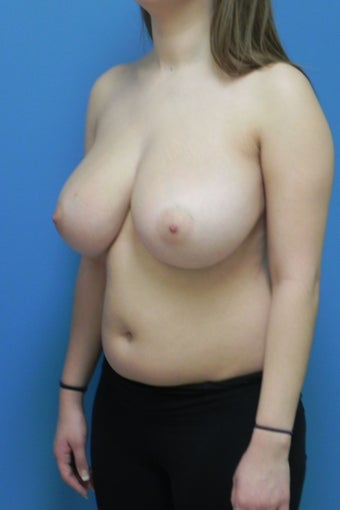 18 Year Old Female Breast Reduction 1350376