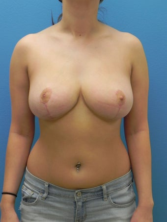 18 Year Old Female Breast Reduction after 1350376