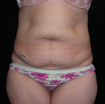 Tummy Tuck before 275742