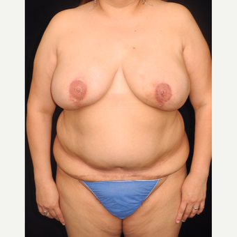 45-54 year old woman with DIEP flap breast reconstruction after 3741962