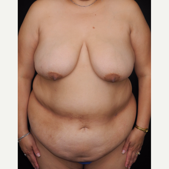 45-54 year old woman with DIEP flap breast reconstruction before 3741962