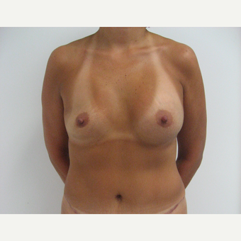 25-34 year old woman treated with Breast Augmentation before 3182961