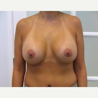 25-34 year old woman treated with Breast Augmentation after 3182961