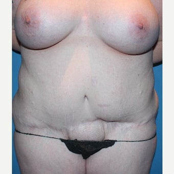 25-34 year old woman treated with Tummy Tuck Revision before 2658018