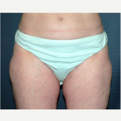 48 year old woman treated with Liposuction after 3721088