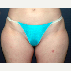 48 year old woman treated with Liposuction before 3721088