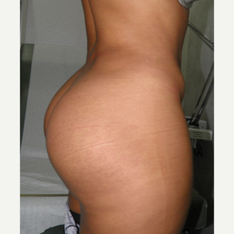 25-34 year old woman treated with Butt Implants after 3122779