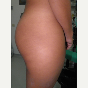25-34 year old woman treated with Butt Implants before 3122779