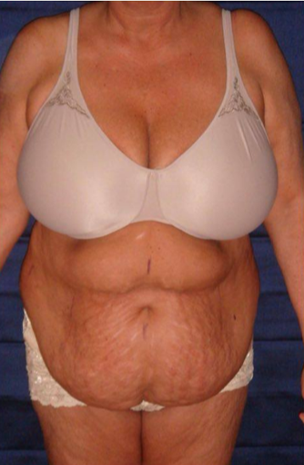 70 year old woman treated with Tummy Tuck before 3738668