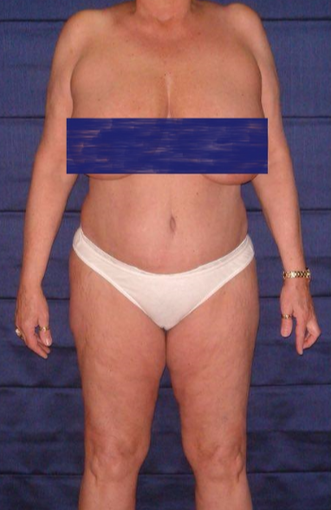 70 year old woman treated with Tummy Tuck after 3738668