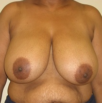 Breast Reduction before 1216603
