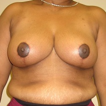 Breast Reduction after 1216603