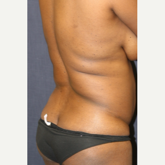 43 year old woman treated with Butt Lift before 3663933