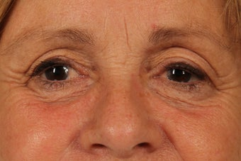 61 year old woman treated with Eyelid Surgery before 3440334