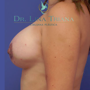 35-44 year old woman treated with Breast Lift after 3260316