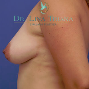 35-44 year old woman treated with Breast Lift before 3260316
