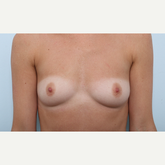 Breast Augmentation before 3345940