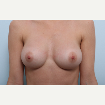 Breast Augmentation after 3345940