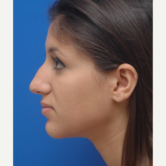 18-24 year old woman treated with Rhinoplasty before 3253544