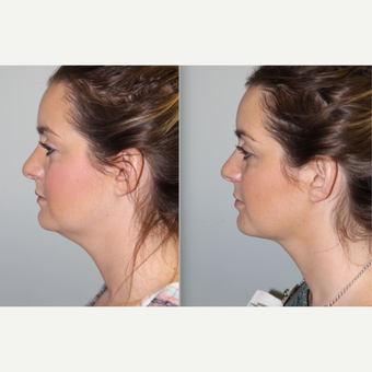 Non surgical neck rejuvenation with Kybella before 3759382