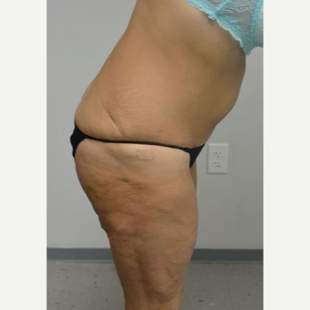 45-54 year old woman treated with Tummy Tuck Revision after 2894427