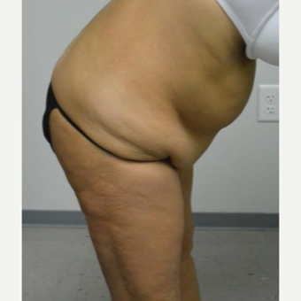 45-54 year old woman treated with Tummy Tuck Revision before 2894427