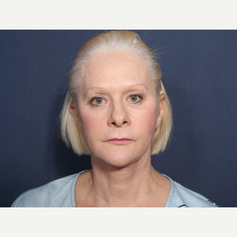 65-74 year old woman treated with Facelift (view 1 of 2) after 3259212