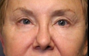 65-74 year old woman treated with Eyelid Surgery after 3046875