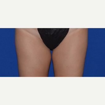 "25-34 year old woman treated with Smart Lipo of Inner Thigh for ""Thigh Gap"" before 3661018"