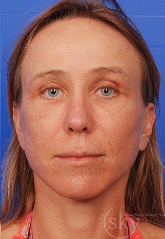Facelift, Browlift, Fat Transfer and Fractionated Laser after 3114518