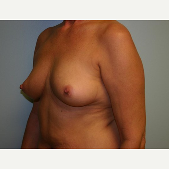 Breast Augmentation before 3560749