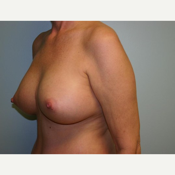 Breast Augmentation after 3560749