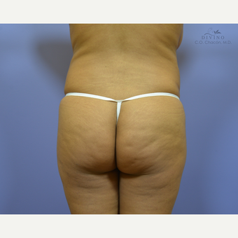 25-34 year old woman treated with Butt Implants before 3329552