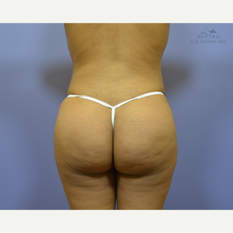 25-34 year old woman treated with Butt Implants after 3329552