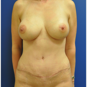 35-44 year old woman treated with Mommy Makeover after 3299904