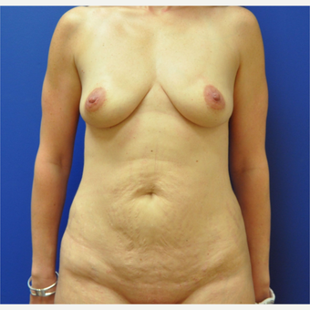 35-44 year old woman treated with Mommy Makeover before 3299904