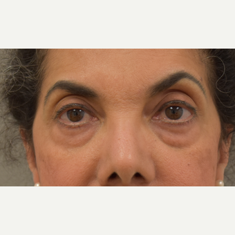 61 year old woman treated with Eyelid Surgery before 3259444
