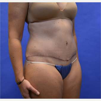 35-44 year old woman treated with Tummy Tuck after 3580084