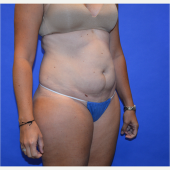 35-44 year old woman treated with Tummy Tuck before 3580084
