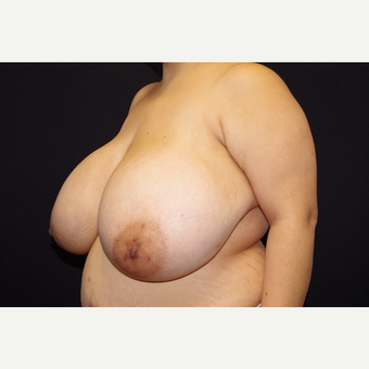 25-34 year old woman treated with Breast Reduction before 3123688