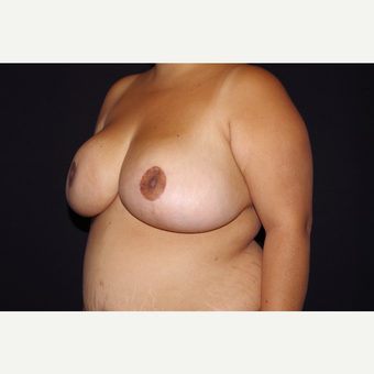 25-34 year old woman treated with Breast Reduction after 3123688