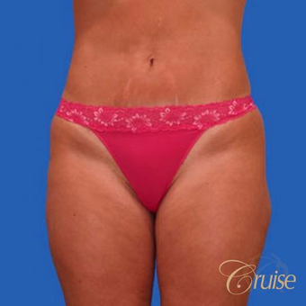 37 year old woman had a mini tummy tuck after 3584913