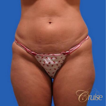37 year old woman had a mini tummy tuck before 3584913