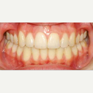 18-24 year old woman treated with Damon Braces after 2593426