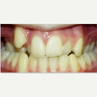 18-24 year old woman treated with Damon Braces before 2593426
