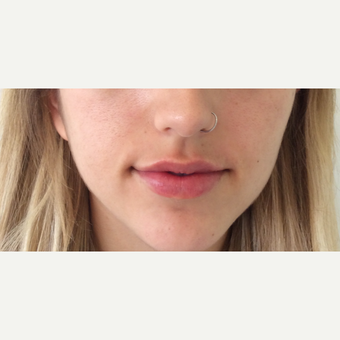 Lip Augmentation after 3065479